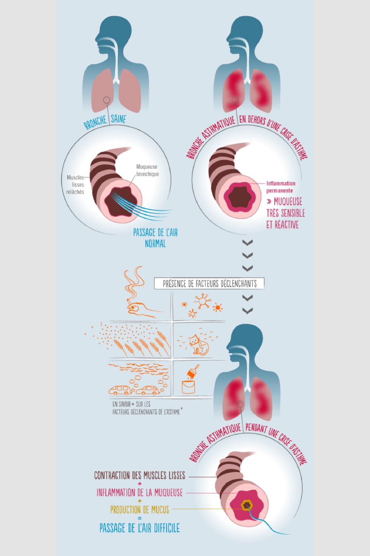 Qu'est-ce que l'asthme